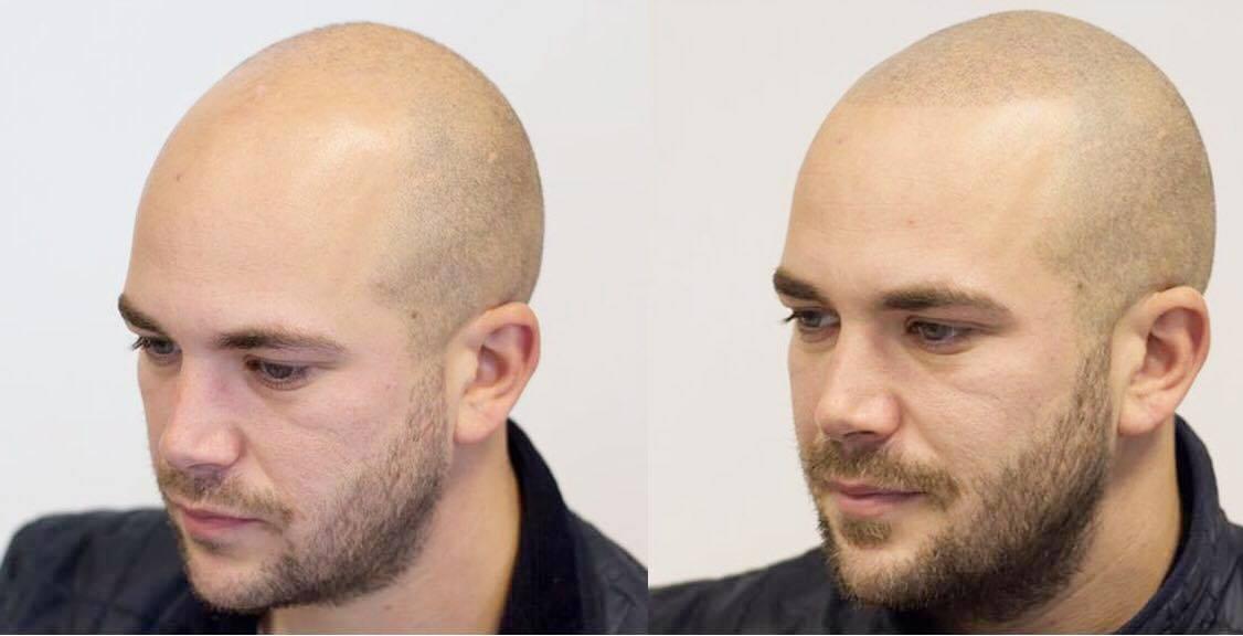 tricopigmentering med Barberingseffekt