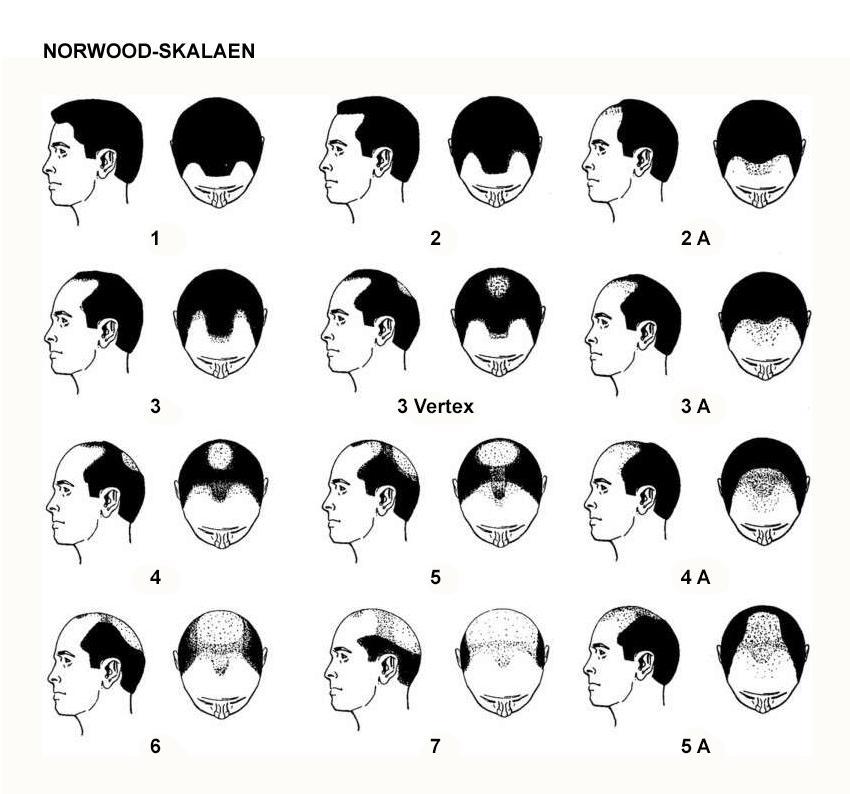 Illustrasjon på norwood skala
