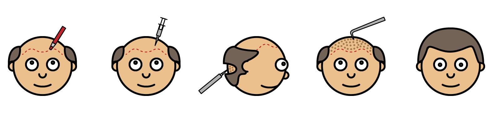 Illustrasjon på hårtasnplantasjon - FUE